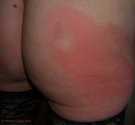 a spanked bottom relieves stress